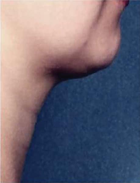 カベリン(アゴ下)6週間6回治療後のAfterの写真