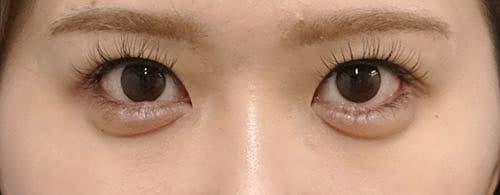 下眼瞼下制(切るタレ目)、他院目尻切開修正 1ヶ月後のAfterの写真