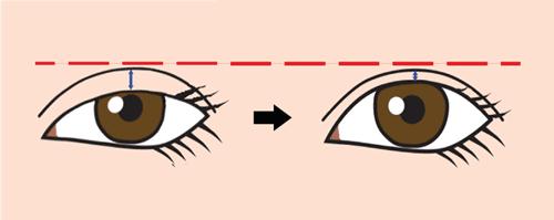 眼瞼下垂術で二重狭くなる