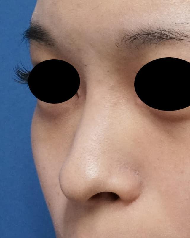 鼻プロテーゼ(I型) 1ヶ月後のBefore写真