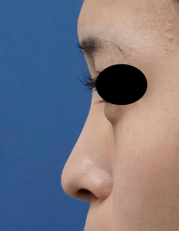 鼻プロテーゼ(I型) 1ヶ月後のAfterの写真