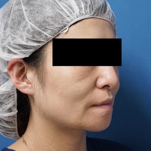 ミントリフトミニ 手術直後のBefore写真