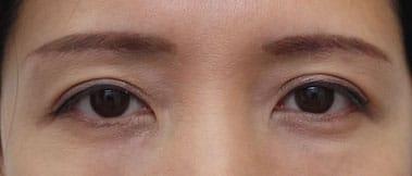 眉下切開症例写真 1ヶ月後