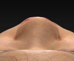 上から 術前 シモタケユカ-鼻尖縮小+軟骨移植