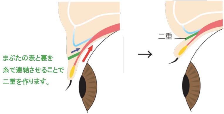 二重埋没法の解説