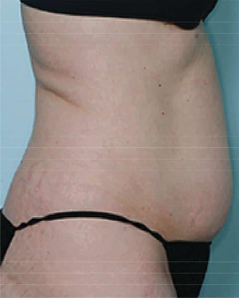 カベリン(腹部) 3ヶ月10回治療後のBefore写真