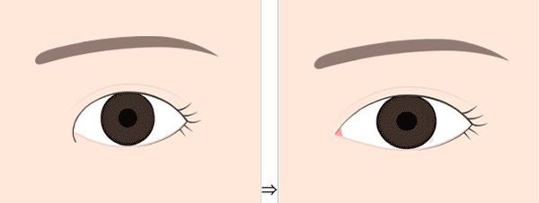 目頭切開の効果と種類まとめ【目を大きく見せたい方必見!】