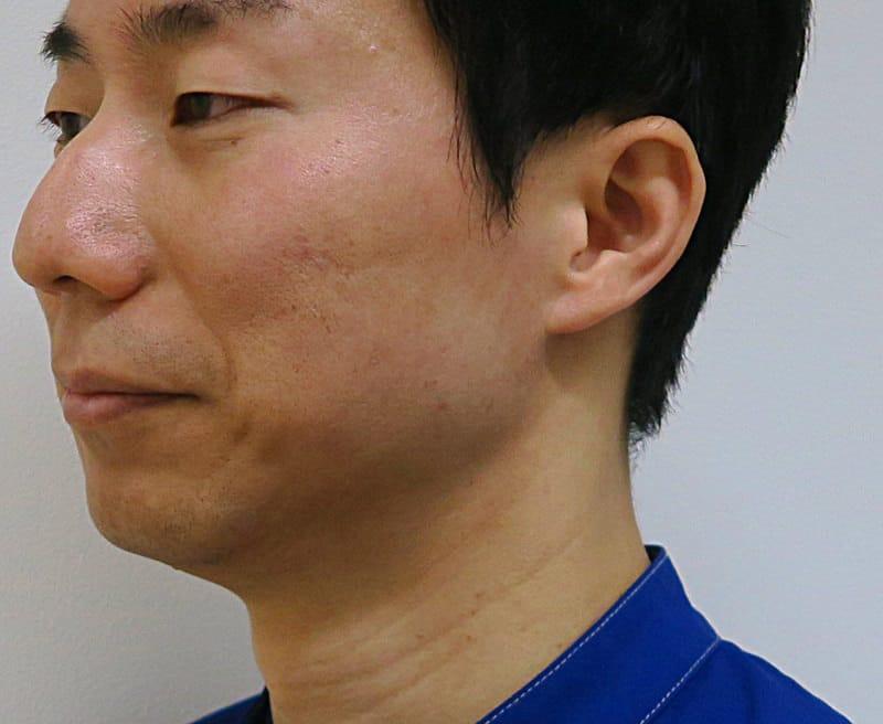 また痩せたねって言われました!強力小顔エラボトックス 2ヶ月半後のBefore写真