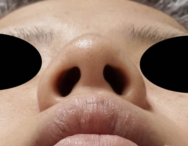 傷が見えない小鼻縮小、flap法 2ヶ月後のBefore写真