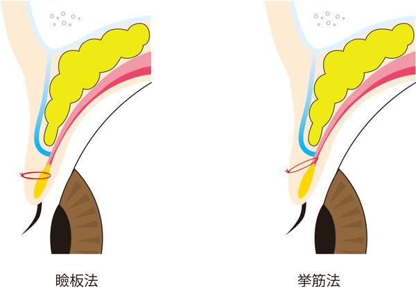 瞼板法と挙筋法の糸のかけ方