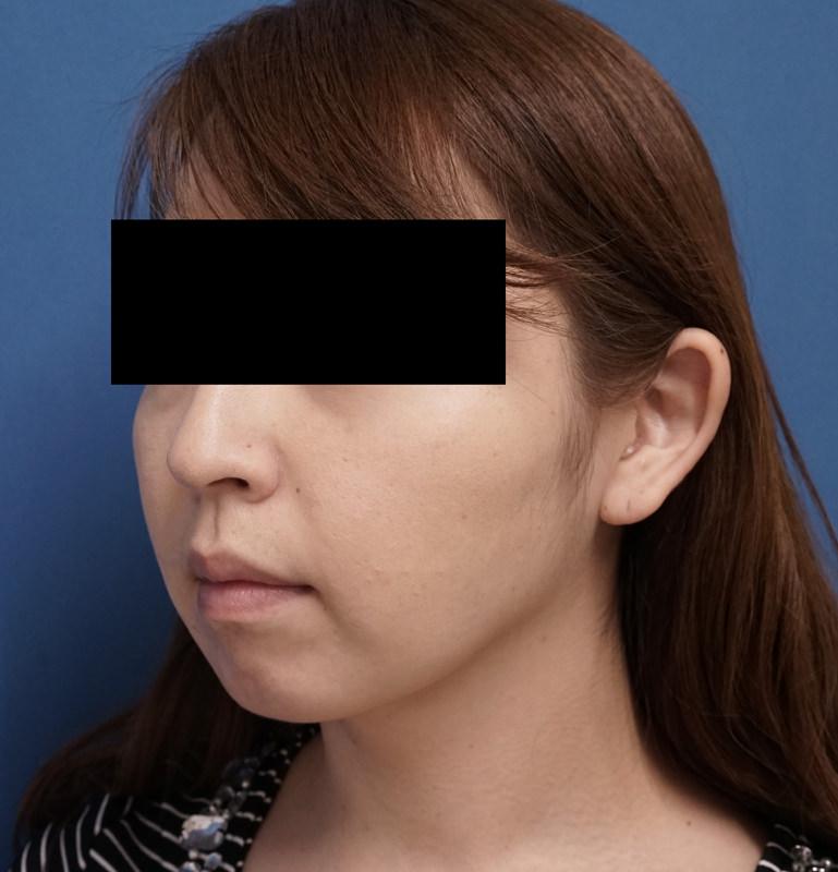 しっかりした小顔効果!|切らない強力小顔3点セット 3ヶ月後のAfterの写真