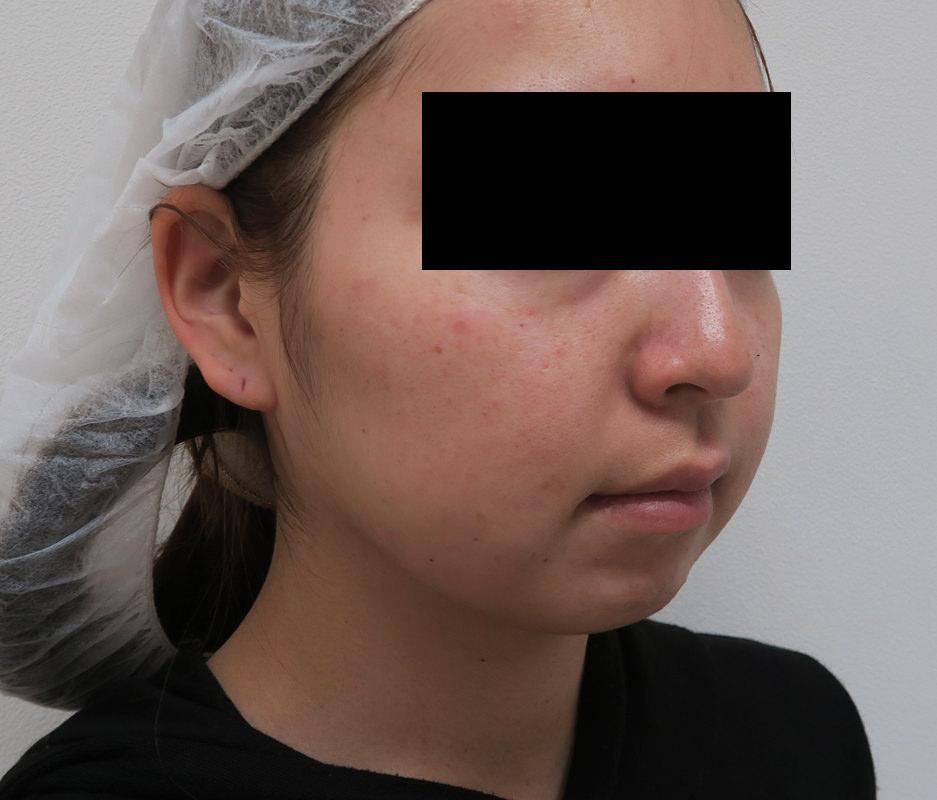 しっかりした小顔効果!|切らない強力小顔3点セット 3ヶ月後のBefore写真