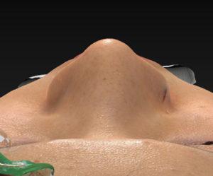 上から 1ヶ月後 シモタケユカ-鼻尖縮小+軟骨移植