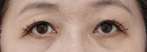 切らない眼瞼下垂 1週間後、1ヶ月後のAfterの写真