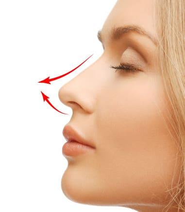 切らない鼻先延長術(ミスコ、MISKO)
