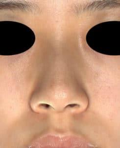 鼻尖縮小(3D法)、ストラット、軟骨移植 3ヶ月後のBefore写真