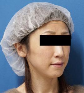 バッカルファット除去 手術前 右斜め 口横の脂肪をすっきり