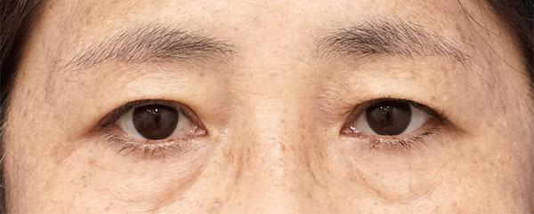眉下切開施術半年後、目の上のたるみ改善
