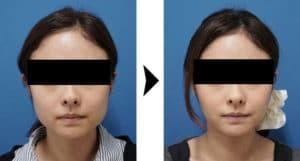 小顔ボトックスの症例写真