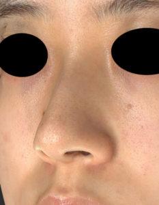 左斜め前 術前 鼻尖縮小(3D法)+軟骨移植