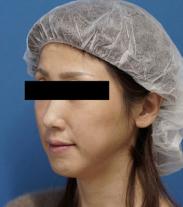 バッカルファット除去 手術前 左斜め 口横の脂肪をすっきり