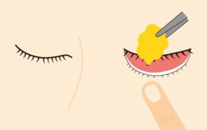 目の下の脂肪を取る施術