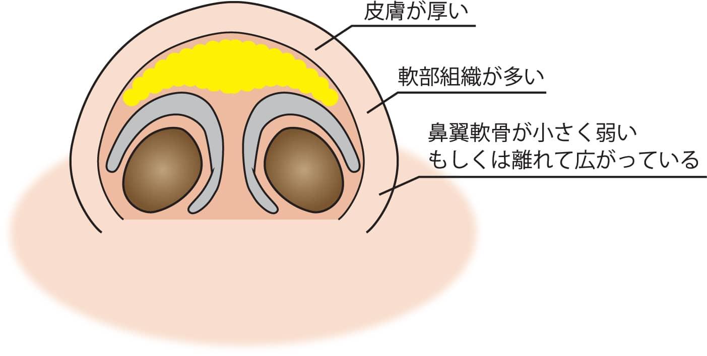 団子鼻の原因のイラスト