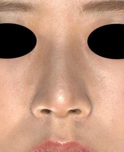 正面 3か月前 鼻尖縮小(3D法)+軟骨移植