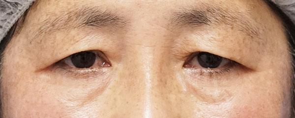 眉下切開施術前、目の上のたるみ改善