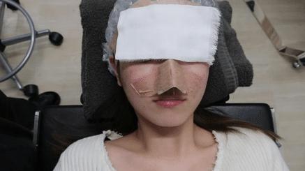 鼻の手術後の様子