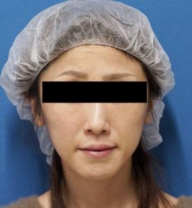 バッカルファット除去 手術前 正面 口横の脂肪をすっきり