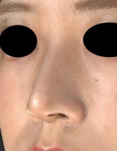 左斜め前 3か月前 鼻尖縮小(3D法)+軟骨移植