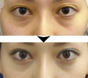 目の下の脂肪取り施術の症例写真