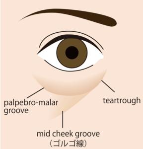 目の下の凹みの名称