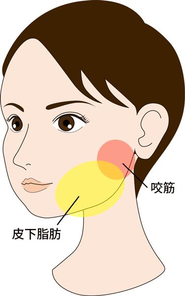 脂肪溶解注射のイメージ