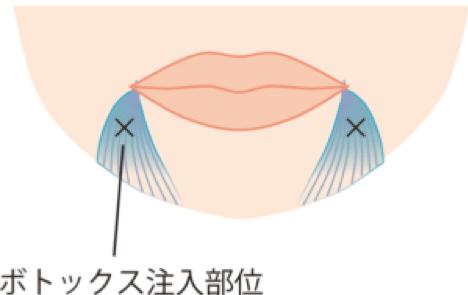 ボトックス注入部位の口角下制筋