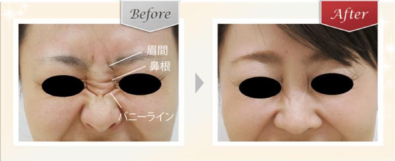 鼻根の横ジワやバニーラインのボトックスの症例写真