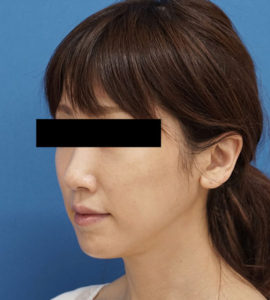バッカルファット除去 半年後 左斜め 口横の脂肪をすっきり