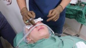 手術前の麻酔