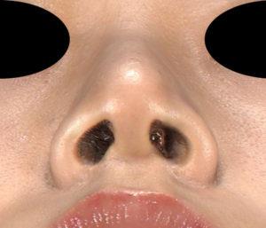 下から 3ヶ月後 鼻尖縮小(3D法)+軟骨移植