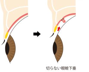 切らない眼瞼下垂の施術方法の解説