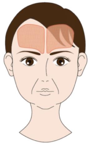 前頭筋の位置