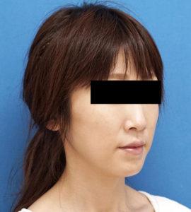 バッカルファット除去 半年後 右斜め 口横の脂肪をすっきり