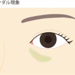 目の下にヒアルロン酸を注入した時の図