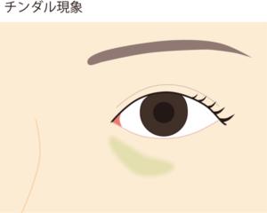 ヒアルロン酸で目の下が青くなる(チンダル現象)