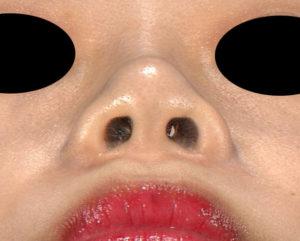 下から 半年後 プロテ+鼻尖縮小(3D法)+鼻翼縮小(内側・flap法)