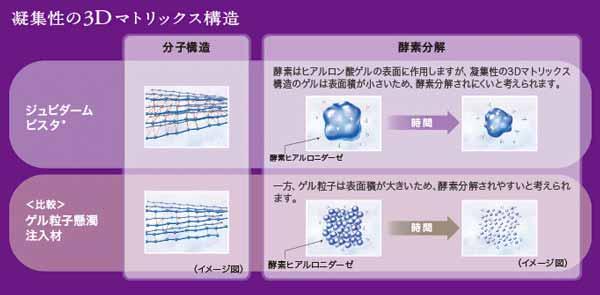 3Dマトリックス ヒアルロン酸ウルトラプラス