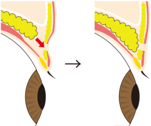 二重切開の解説