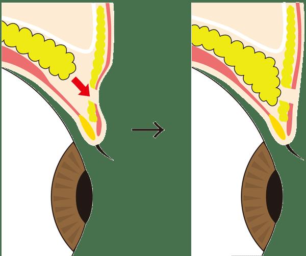 眼窩脂肪を引き下げてくぼみ目を改善させる図