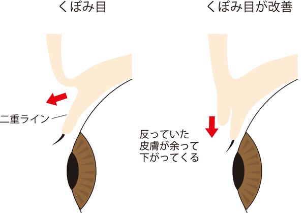 くぼみ目が改善すると皮膚が余るイメージ